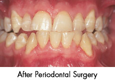after-periodontal-surgery
