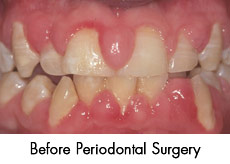 before-periodontal-surgery