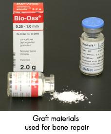 bone-graft-repair