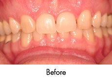 esthtic crown lengthening before
