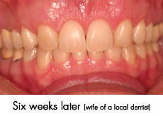 esthtic crown lengthening after