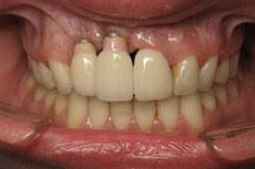 dental-implant-after