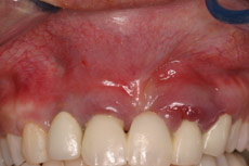 dental-implant-infection