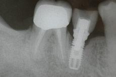 dental-implant-xray