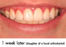 esthtic-crown-lengthening-after