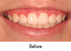 esthtic-crown-lengthening-before