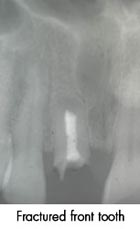 Fractured Front Tooth