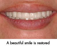 Beautiful restored smile