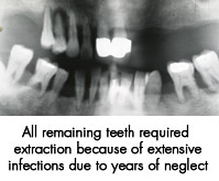 All remaining teeth required extraction due to extensive infections due to years of neglect