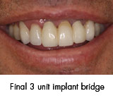 final 3 unit dental implant