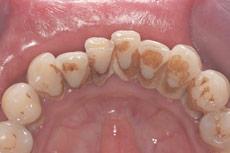 periodontal-disesae-2