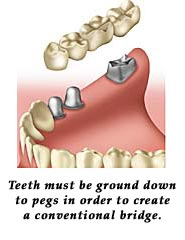 Teeth must be ground down to peg in order to create a conventional bridge