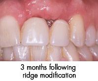 Ridge Modification after