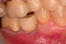 dental-implant-misalign