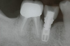 dental-implant-xray
