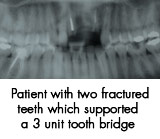 Patient with two fractured teeth which supported a 3 init tooth bridge