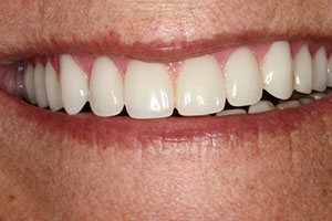 Beautiful Smile with Dental Implants
