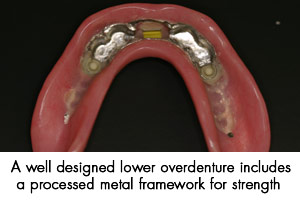A well designed lower overdenture includes a process meatal framework for strength