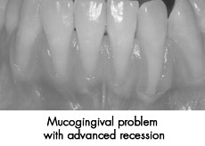 Mucogingival surgery before