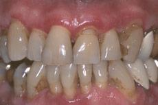 periodontal-disesae-1