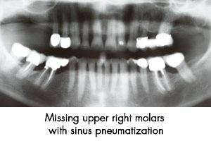 sinus-graft-3